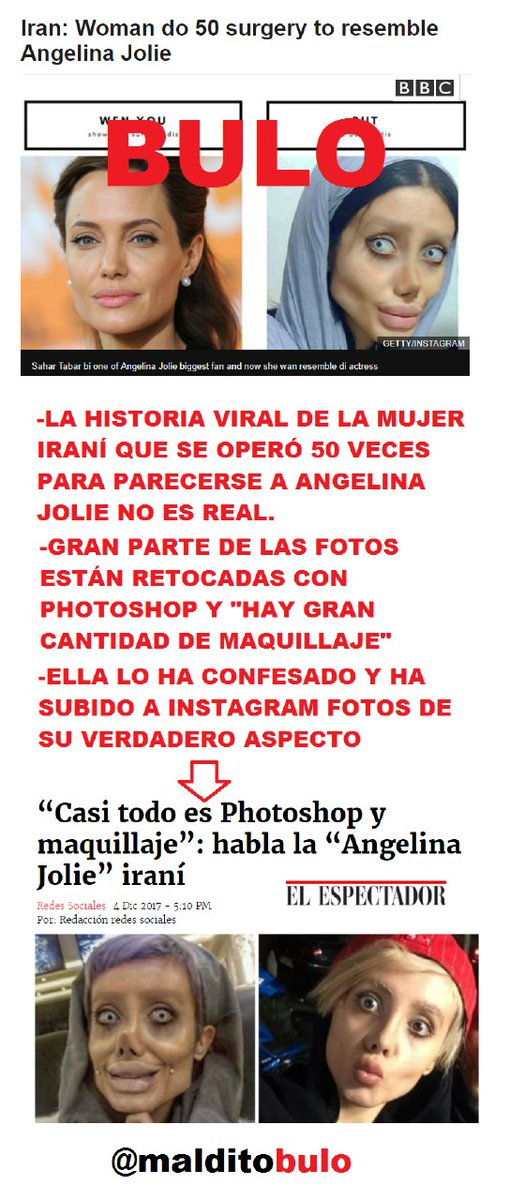 No, no hay pruebas de que la historia de la iraní que se operó 50 veces para parecerse a Angelina Jolie sea real